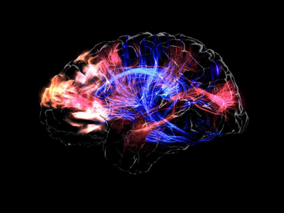 Brain and Music 3